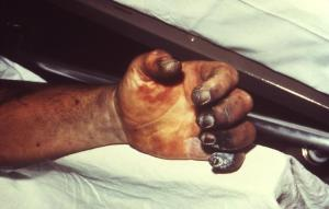 Hand necrosis caused by plague (from Wikipedia)